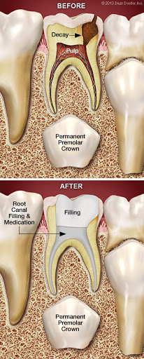 root_canal_diagram