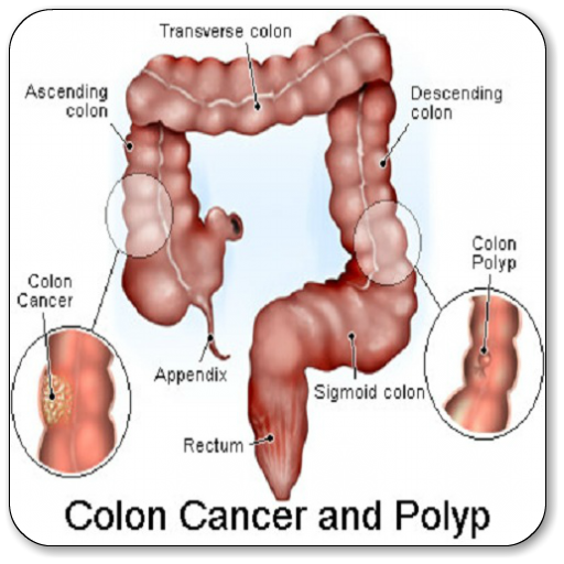 Colon Cancer Apps On Google Play