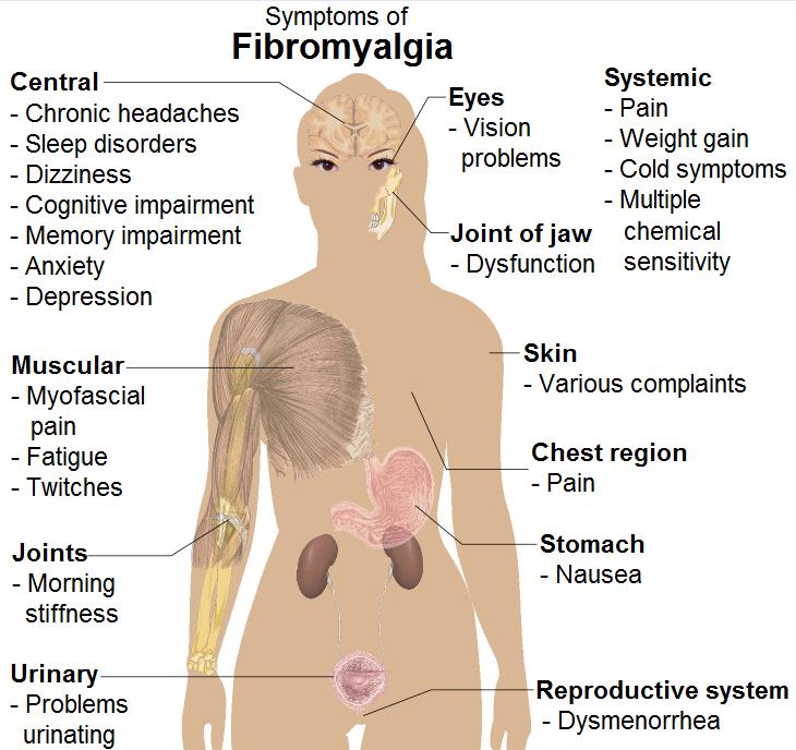 symptoms_of_fibromyalgia