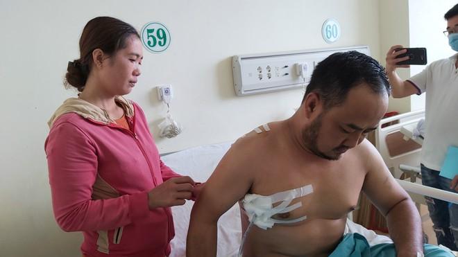 Bà Rịa Vũng Tàu: Một người đàn ông bị người dí súng, đâm lủng phổi