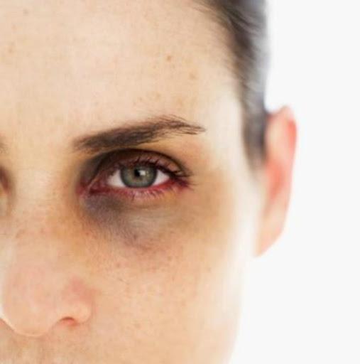 Dark Circle Under Eyes Tips ss2