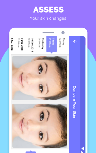 TroveSkin: Your Skincare Coach screenshot 3