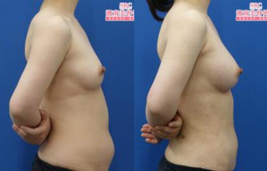 ライポマティック併用ジェネラ併用コンデンスリッチ豊胸 術後3ヶ月