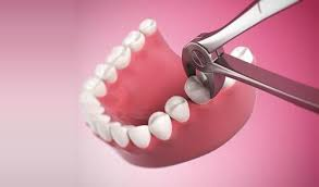 Những Biến Chứng Có Thể Xảy Ra Khi sử dụng thuốc Tê Nhổ Răng 1