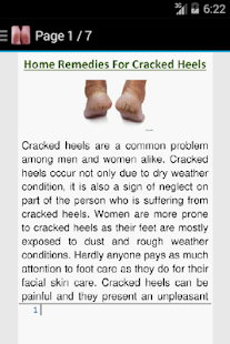Get Rid of Cracked Heels - náhled