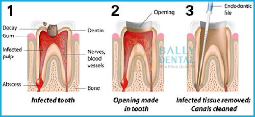 Chữa tủy răng mất bao lâu thời gian mới xong - Nha Khoa Bally 1