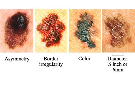 http://www.beltina.org/pics/skin_cancer.jpg