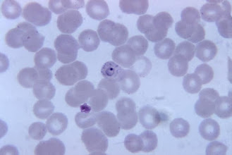 Photo: Plasmodium vivax trophozoite in red blood cell, with basophilic stippling (due to anemia)