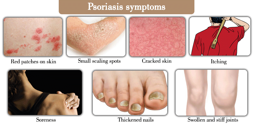 Psoriasis: Symptoms