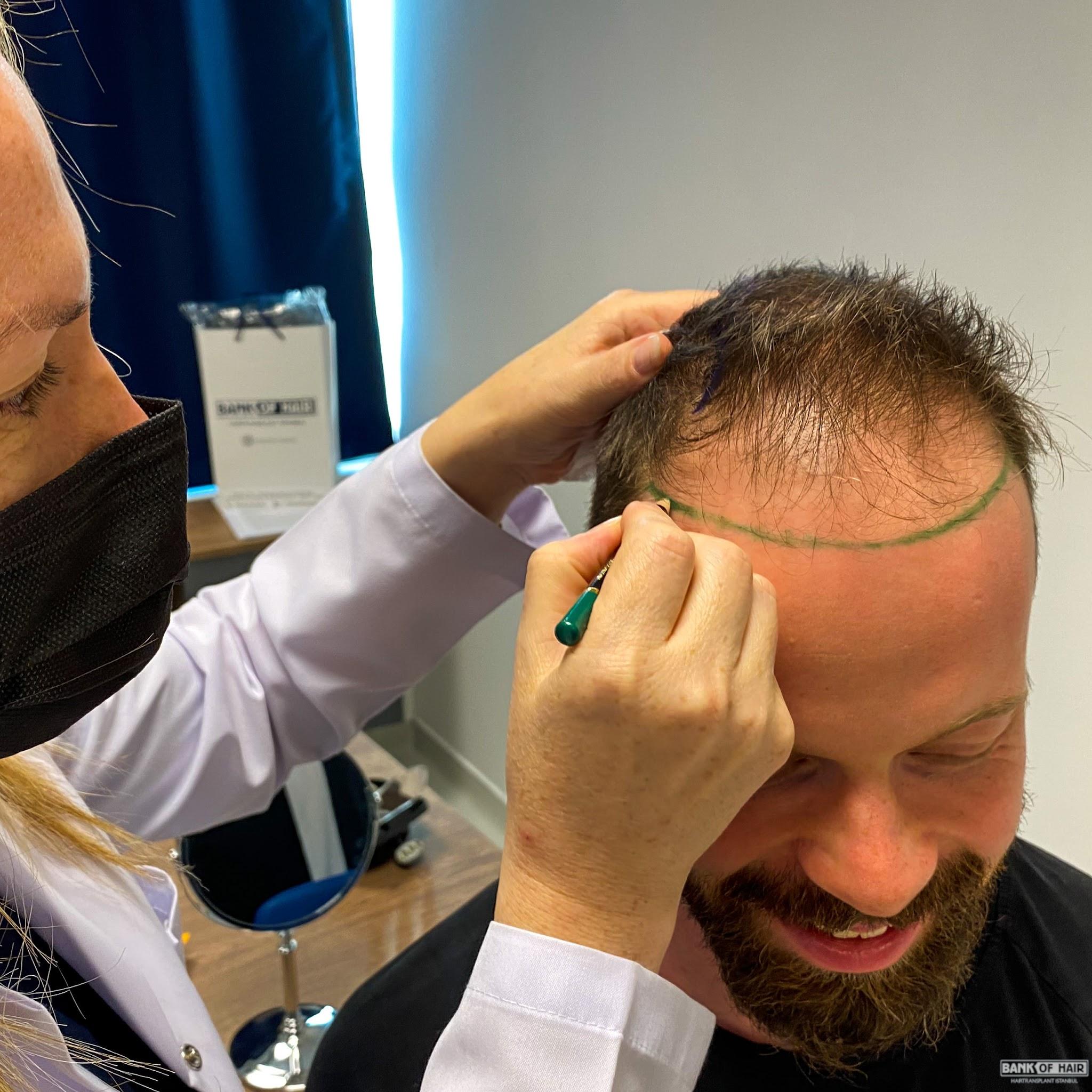 Haartransplantation erfahrungen Bart Haartransplantation: