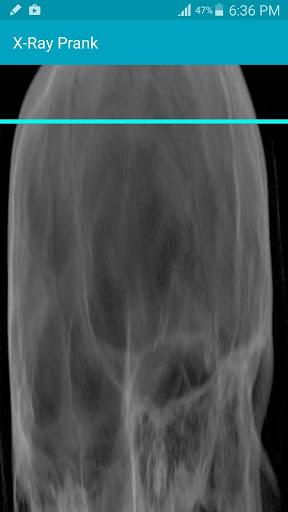 X Ray Scanner Prank