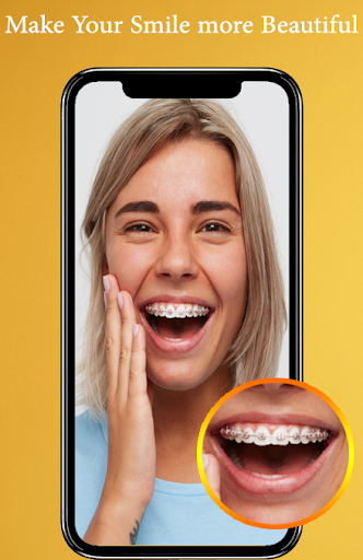 Braces Photo Editor 2019 screenshots 2