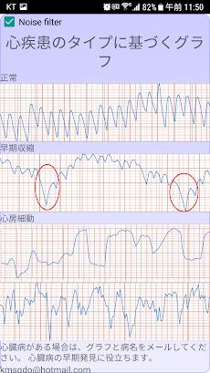 心臓 診断(不整脈)のおすすめ画像5