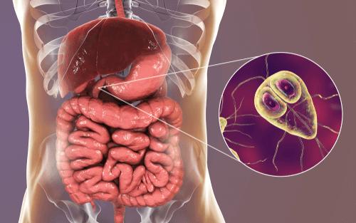 Hasil gambar untuk giardiasis