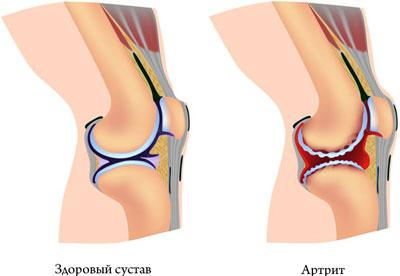 http://simptomy-i-lechenie.net/wp-content/uploads/2017/12/artrit-sustava.jpg