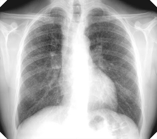 A chest X-ray of simple silicosis