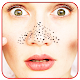 Blackhead Removal Remedies Download for PC Windows 10/8/7