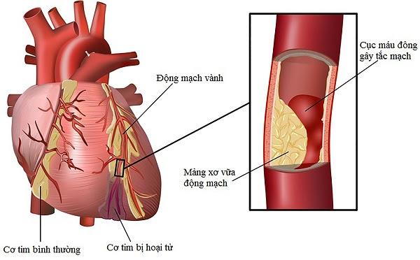 Mỡ máu gây ra xơ vữa động mạch gây nhồi máu cơ tim