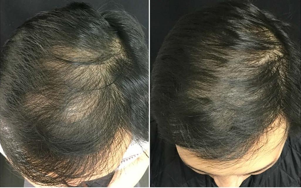 C:UsersMKDesktopprp_hair_loss-1296x728-slide21.jpg