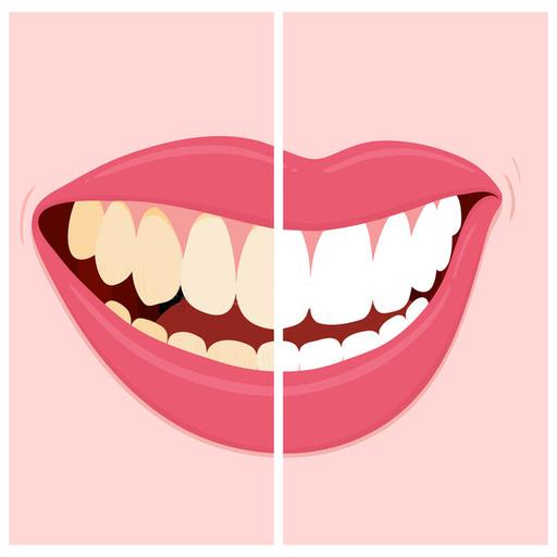 تبييض الاسنان في يومين