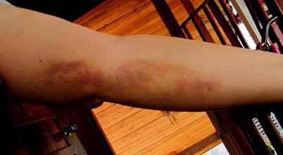 Photo: Bruised Arm