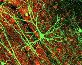 Photo: New addition to our scale of the brain gallery from Nedivi et al. Image illustrates gorgeous output of multi-photon microscopy