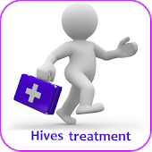 Hives treatment
