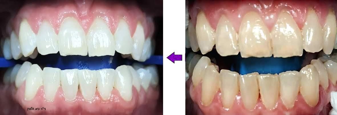 הלבנת שיניים תוך שעה במרפאה - זום -גיא וולפין