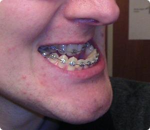 prognatism mandibular