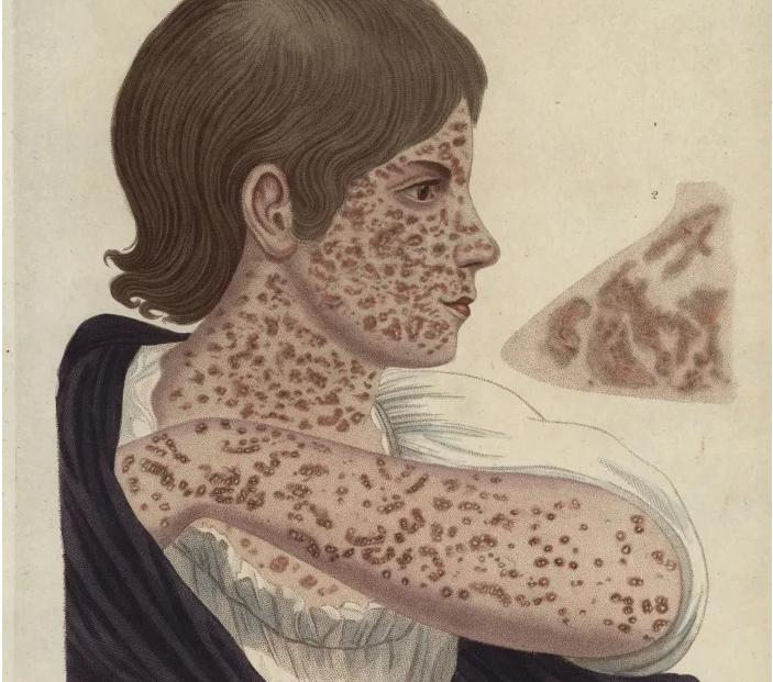 Hình minh họa các triệu chứng từ bệnh sởi năm 1822.