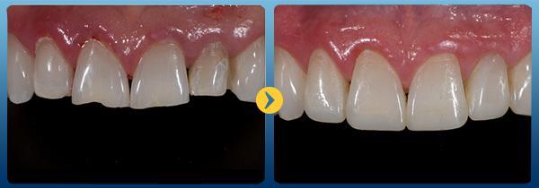 Cách trám răng mẻ an toàn phục hình Nhanh và đảm bảo Không Đau 1