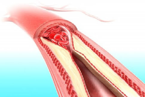Clean Your Arteries With One Simple Fruit