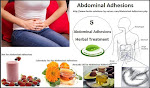 Natural Treatment for Abdominal Adhesions