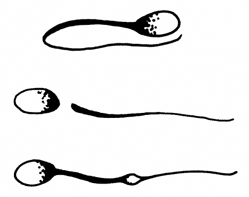 Sperm defects that occur during tubular transport or are caused by poor semen handling techniques include kinked tails, detached heads, and cytoplasmic droplets