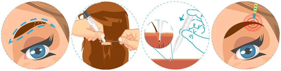 روش کاشت ابرو