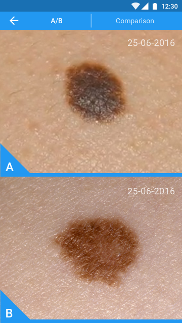"Molexplore ""Skin Cancer App""- screenshot"
