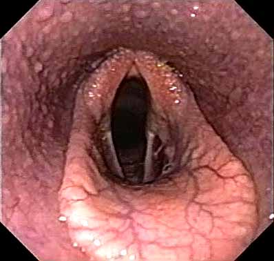Pharyngeal grade II - Numerous small whitish follicles, interspersed with occasional hyperemic follicles are extending ventrally over the lateral nasopharyngeal walls. This is commonly seen in 2-year-olds.