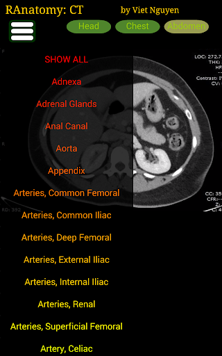 Radiology CT Anatomy  screenshots 7