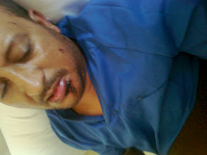 Photo: DAWDI AHMED EMBAREK BRAHIM. Esposado en la cama del hospital