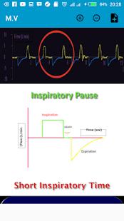 mechanical ventilation advanced - náhled