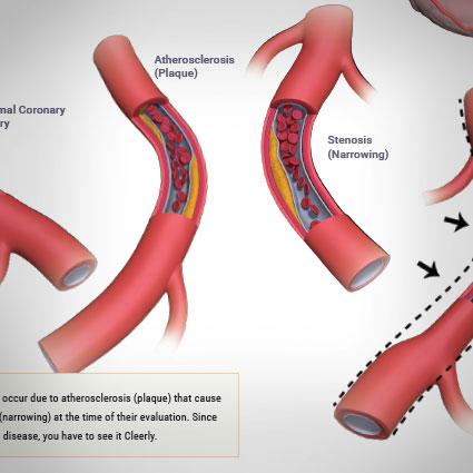 coronary-artery-plaques