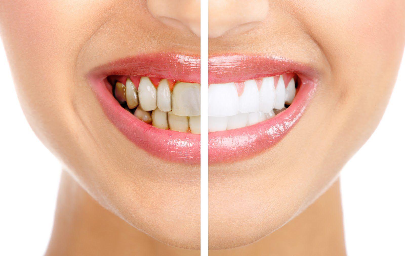 Tẩy trắng răng có ảnh hưởng gì không - có đau buốt không? 1