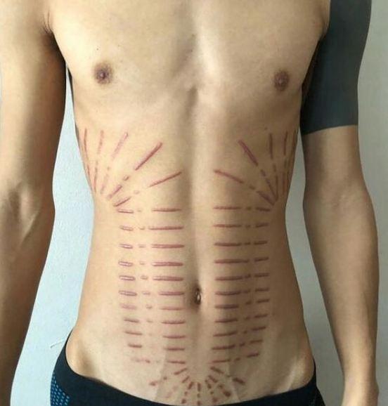 6. ประเภทรอยสักบ่งบอกความเป็นศิลปะบนร่างกาย Scarification