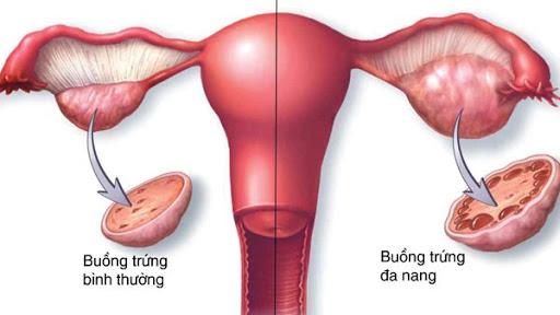 Buồng trứng đa nang có khả năng làm mẹ không