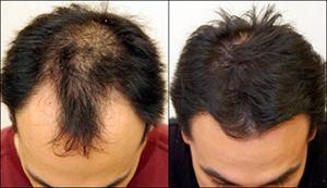 saç ekimi öncesi sonrası fotoğraf
