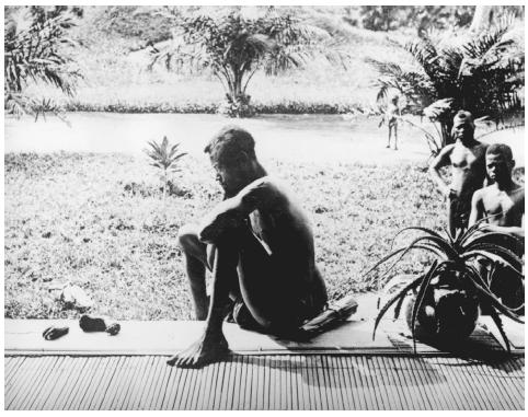 Photo: Nsala, of the district of Wala, looking at the severed hand and foot of his five-year-old daughter, a victim of the Anglo-Belgian India Rubber Company (A.B.I.R.) militia.