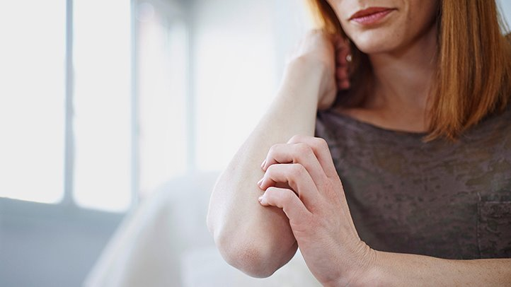 Psoriasis Linked to Higher Risk of Depression