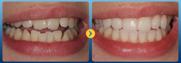 Niềng răng mặt lưỡi có tốt không, giá bao nhiêu hiện nay? 1