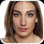 Pimple Eraser Photo Editor Icon