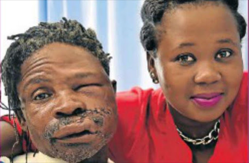 Zwelake Dyan is recovering well in hospital. With him is his daughter, Bulelwa, 26. Picture: Eugene Coetzee